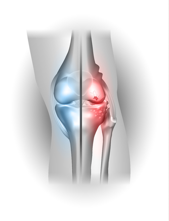 Damaged and healthy joint design. Part of the joint normal and other part damaged on a white background