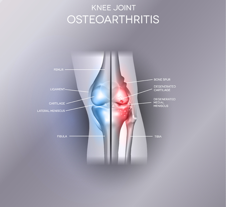 Damaged and healthy joint design. Part of the joint normal and other part damaged on an abstract grey background.