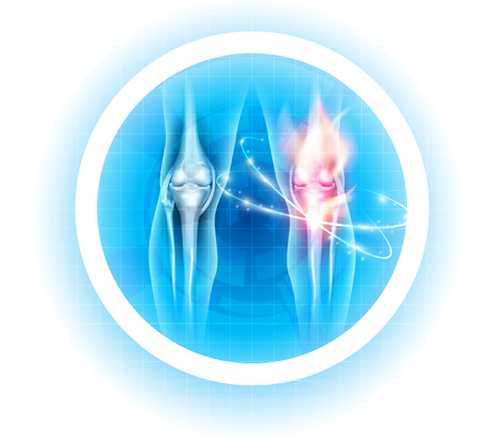 Joint problems symbol, transparent legs with joints on a beautiful light blue background
