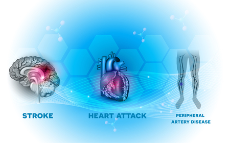 Heart and blood vessel diseases, Stroke, Heart attack and peripheral artery disease, blockage of the blood vessels supplying blood to the brain, heart and legs.