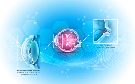 Glaucoma the eye disease on a beautiful abstract light blue background