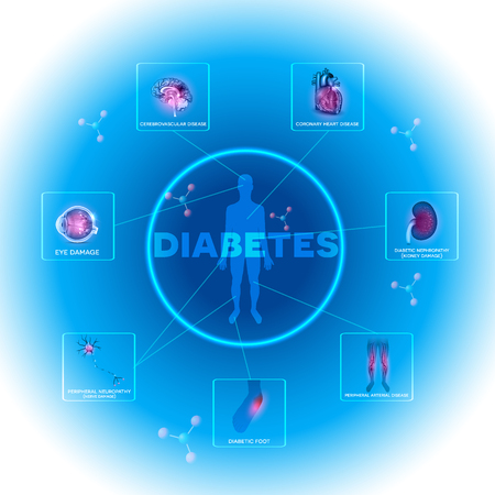 Diabetes affected organs. Diabetes affects nerves, kidneys, eyes, vessels, heart and skin. Vettoriali