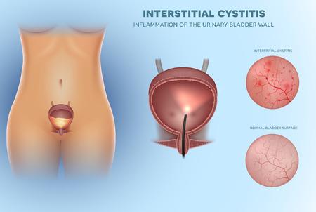 Inflamación de la cistitis de la vejiga urinaria, ilustración de primer plano del revestimiento interior Ilustración de vector