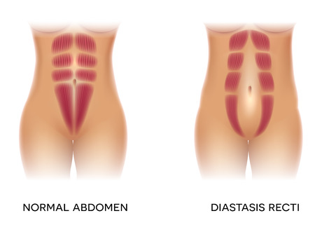 Diastasis recti also known as abdominal separation, it is common among pregnant women. There is a gap between the rectus abdominis muscles. Illustration