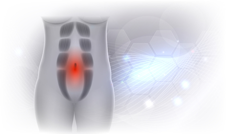 Diastasis Recti also known as Diastasis Rectus Abdominus or abdominal separation, it is common among pregnant women and post birth. There is a gap between the rectus abdominis muscles. Beautiful light grey sparkling background.