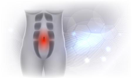 Diastasis Recti znany również jako Diastasis Rectus Abdominus lub separacja brzucha, jest powszechny wśród kobiet w ciąży i po porodzie. Między mięśniami prostymi brzucha jest przerwa. Piękne jasnoszare tło musujące. Ilustracje wektorowe