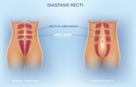 Diastasis Recti also known as Diastasis Rectus Abdominus or abdominal separation, it is common among pregnant women and post birth. There is a gap between the rectus abdominis muscles. Imagens - 111903399