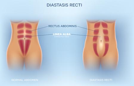 Diastasis Recti znany również jako Diastasis Rectus Abdominus lub separacja brzucha, jest powszechny wśród kobiet w ciąży i po porodzie. Między mięśniami prostymi brzucha jest przerwa. Ilustracje wektorowe