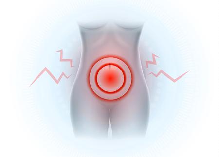 Female lower abdominal pain, Pelvic pain Illustration
