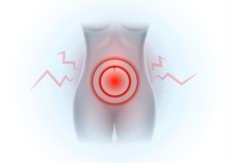 Female lower abdominal pain, Pelvic pain Stock Illustratie