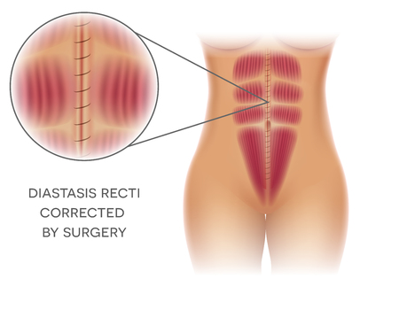 Diastasis Recti also known as Diastasis Rectus Abdominis or abdominal separation, it is common among pregnant women and post birth. Before and after surgery correction. Фото со стока - 106912128