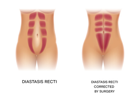 Diastasis Recti znana również jako Diastasis Rectus Abdominis lub separacja brzucha, jest powszechna u kobiet w ciąży i po porodzie. Przed i po korekcji operacji.