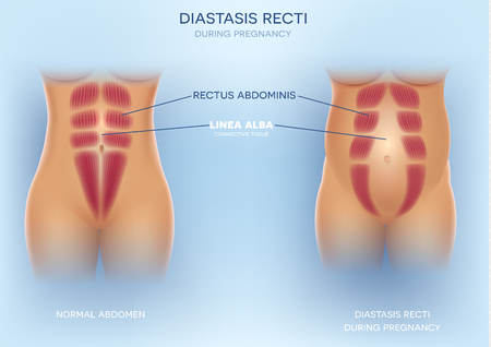 Diastasis Recti during pregnancy, also known as Diastasis Rectus Abdominus or abdominal separation, it is common among pregnant women and post birth. There is a gap between muscles. 写真素材 - 106763066