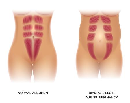 Diastasis Recti pendant la grossesse, également connu sous le nom de Diastasis Rectus Abdominus ou séparation abdominale, il est fréquent chez les femmes enceintes et après la naissance. Il y a un écart entre les muscles.