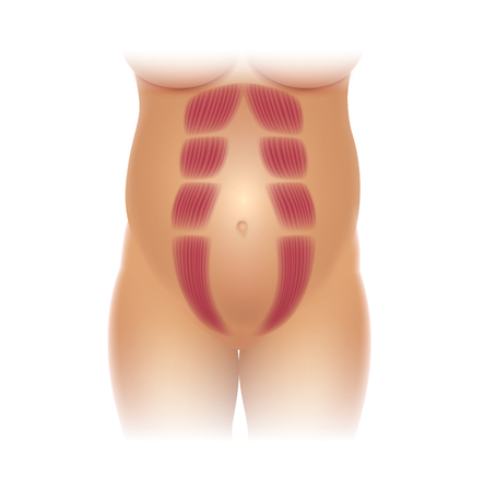 Diastasis Recti during pregnancy, also known as Diastasis Rectus Abdominus or abdominal separation, it is common among pregnant women and post birth. There is a gap between muscles.