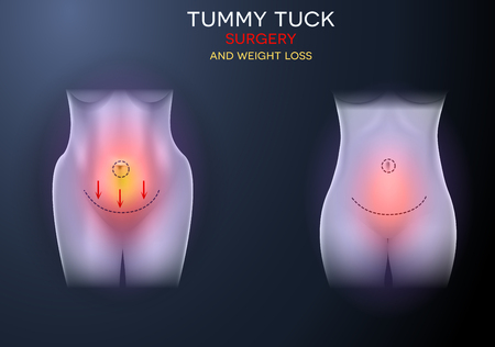 Female body correction before and after surgery and weight loss colorful illustration on a dark background