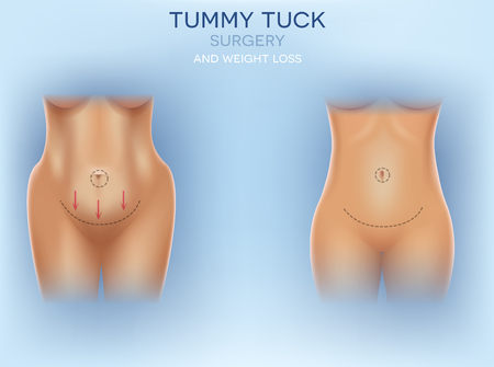 Female body correction before and after surgery and weight loss colorful illustration on a light blue background