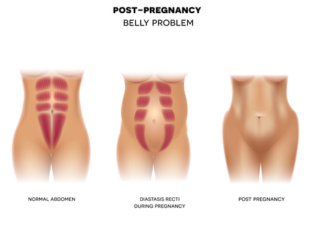 Female body before pregnancy with normal muscles, Diastasis recti during pregnancy and body postpartum colorful illustration on a white background