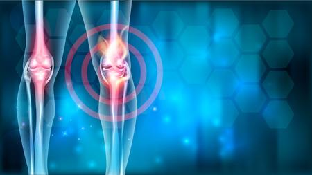 Problèmes de douleurs articulaires fond bleu abstrait avec feu abstrait Vecteurs