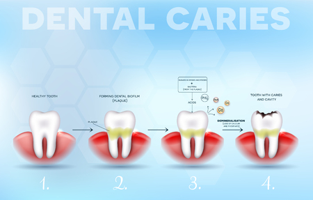 Tooth decay, dental caries formation detailed diagram, from healthy tooth till decay, dental plaque, loss of calcium and phosphate.  Beautiful dental poster with abstract light blue background
