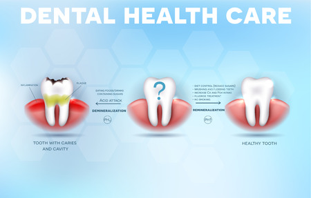 Dental health care tips, how to prevent tooth decay formation and acid attack detailed diagram Stock Illustratie