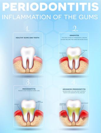 Periodontitis, etapas de inflamación de las encías, ilustración detallada. Diente sano, Gingivitis y al final Periodontitis avanzada