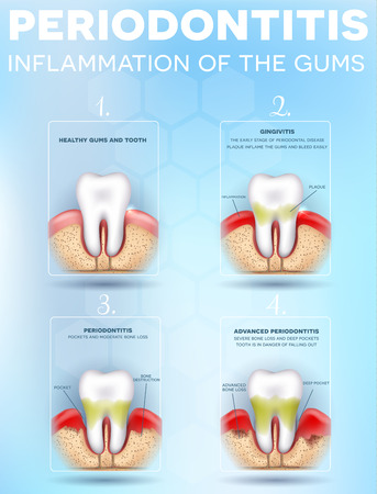 Periodontitis, inflammation of the gums stages, detailed illustration. Healthy tooth, Gingivitis and at the end advanced Periodontitis Ilustração