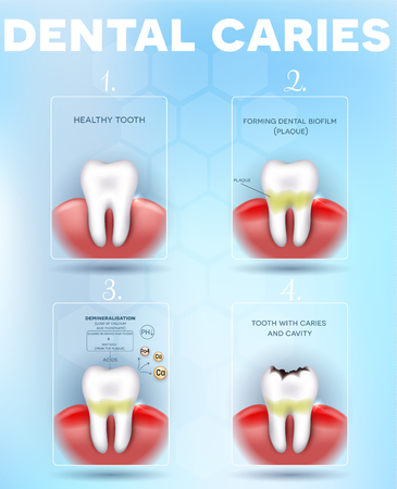 Tooth decay, dental caries formation detailed diagram, dental plaque, loss of calcium, phosphate and finally forms caries and cavity. Beautiful dental poster with abstract light blue background
