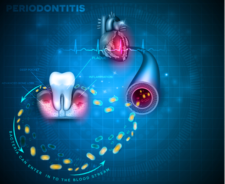 Complications of gum disease Periodontitis.  Bacteria from inflamed gums can enter in to the blood stream and affect other organs such as heart Stock Vector - 111654474