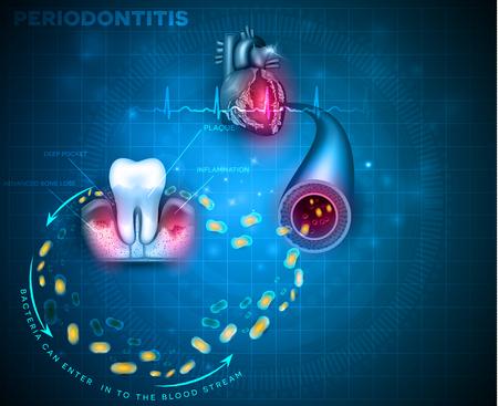 Komplikationen der Zahnfleischerkrankung Parodontitis. Bakterien von entzündetem Zahnfleisch können in den Blutkreislauf gelangen und andere Organe wie das Herz angreifen Vektorgrafik
