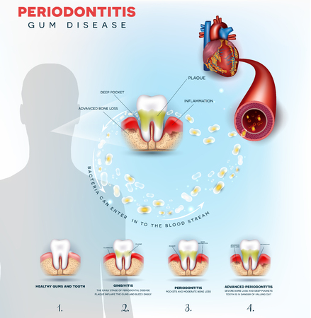 Complications of gum disease Periodontitis.  Bacteria from inflamed gums can enter in to the blood stream and affect other organs such as heart. 版權商用圖片 - 111654477