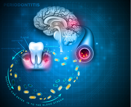 Complications of gum disease Periodontitis.  Bacteria from inflamed gums can enter in to the blood stream and affect other organs such as brain Illustration