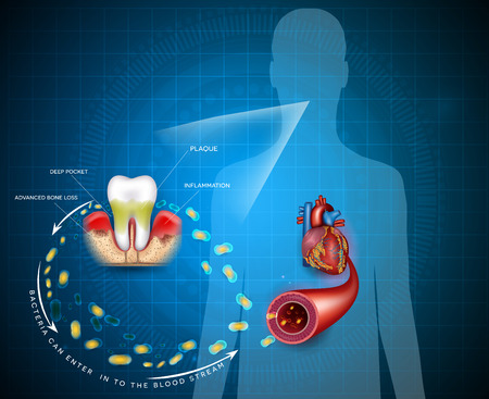 Gum disease inflammation bacteria can enter in to the blood stream an affect heart.  Periodontitis disease disease anatomy on an abstract blue background 免版税图像 - 117791180