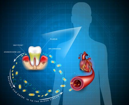 Ontstekingsbacteriën voor tandvleesaandoeningen kunnen de bloedbaan binnendringen en het hart beïnvloeden. Parodontitis ziekte ziekte anatomie op een abstracte blauwe achtergrond