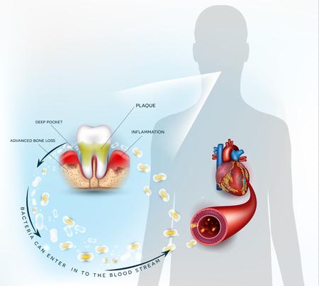 I batteri dell'infiammazione delle malattie gengivali possono entrare nel flusso sanguigno e influenzare il cuore. Anatomia della malattia della parodontite Vettoriali