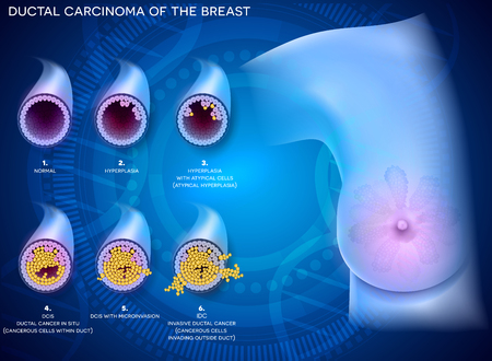 Ductal carcinoma of the breast, detailed medical illustration. At the beginning normal duct, then hyperplasia, after that atypical cells are invading, Ductal cancer in situ and invasive ductal cancer.
