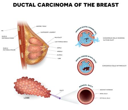 Carcinome canalaire du sein, illustration médicale détaillée. Cancer canalaire in situ et anatomie de la section transversale du cancer canalaire invasif sur fond blanc.