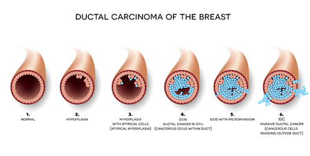 Ductal carcinoma of the breast, detailed medical illustration. At the beginning normal duct, then hyperplasia, after that atypical cells are invading.