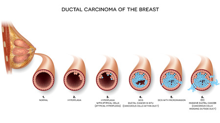 Ductal carcinoma of the breast cross section anatomy, detailed anatomy illustration. At the beginning normal duct, then hyperplasia, after that atypical cells are invading.