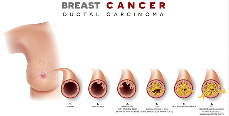 Breast cancer Ductal carcinoma of the breast, detailed medical illustration. At the beginning normal duct, then hyperplasia, after that atypical cells are invading, Ductal cancer in situ and invasive ductal cancer. 向量圖像