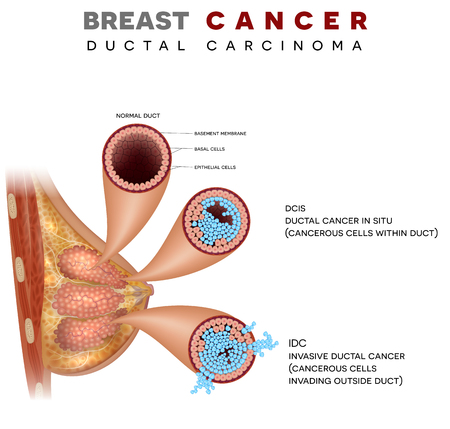 Breast cancer anatomy illustration, Ductal carcinoma of the breast, detailed medical illustration. Normal duct, Ductal cancer in situ and invasive ductal cancer on a white background