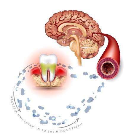 Zahnprobleme Komplikationen, Zahnfleischentzündungen Bakterien können in den Blutkreislauf gelangen und das Gehirn beeinträchtigen. Parodontitis-Info-Poster auf weißem Hintergrund