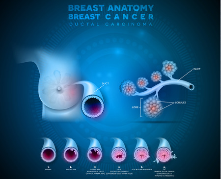 Breast cancer anatomy illustration, Ductal carcinoma of the breast, detailed medical illustration. Normal duct anatomy, Ductal cancer in situ and invasive ductal cancer 版權商用圖片 - 117791493