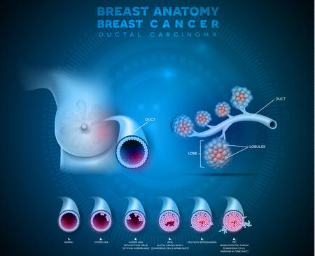 Illustration de l'anatomie du cancer du sein, carcinome canalaire du sein, illustration médicale détaillée. Anatomie canalaire normale, cancer canalaire in situ et cancer canalaire invasif Vecteurs