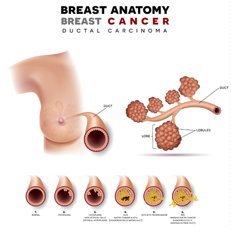 Breast cancer anatomy illustration, Ductal carcinoma of the breast, detailed medical illustration. Normal duct anatomy, Ductal cancer in situ and invasive ductal cancer