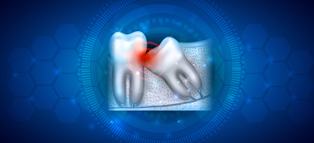 Wisdom tooth eruption problems illustrated anatomy on an abstract blue background 版權商用圖片 - 126527320