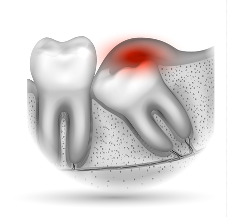 Wisdom tooth eruption problems inflamed gums illustrated anatomy