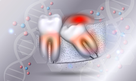 Wisdom tooth eruption inflamed gums illustrated anatomy on a beautiful abstract scientific background