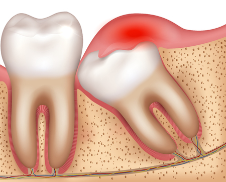 Wisdom tooth eruption problems inflamed gums illustrated anatomy 版權商用圖片 - 126034771