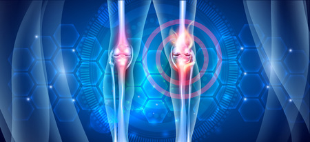 Joint knee problems diagram on an abstract blue scientific background with abstract fire, joint ache concept 向量圖像